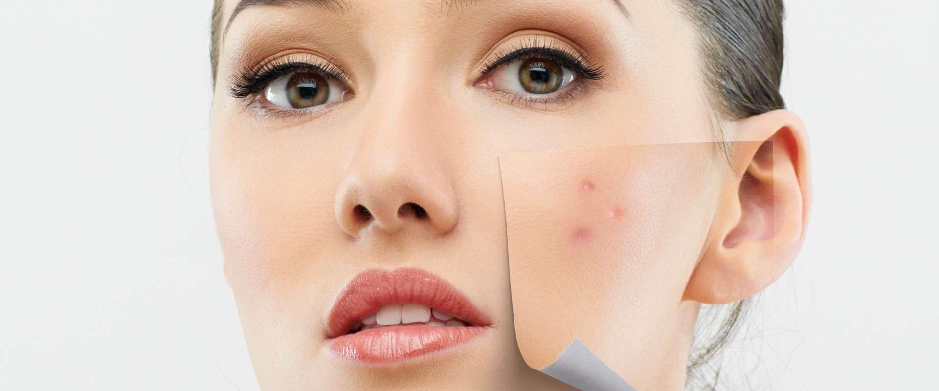 VIDEO: Maska za čišćenje lica i spriječavanje akni