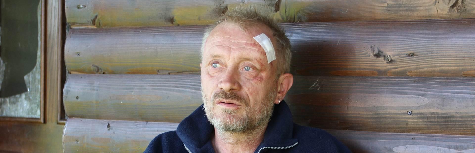 TEŠKO KAZNENO DJELO: Napadači na Peratovića pod istragom zbog pokušaja ubojstva