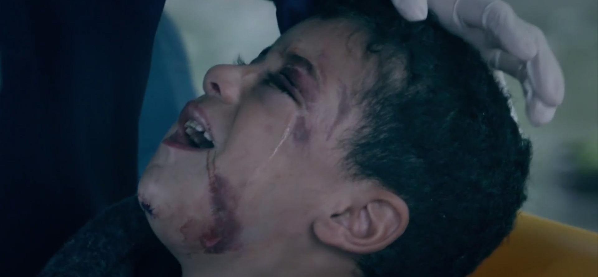 VIDEO: #FINDAZAM Sirijski dječak posljednji put viđen u Beogradu s polomljenom vilicom, oteli ga kako bi lakše prrešli granicu?