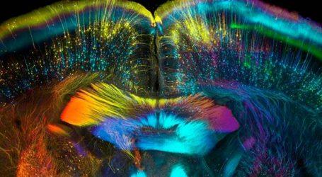 LJUDSKI MOZAK Kod žena veći moždani volumen nalazi se u frontalnim i medijalnim paralimbičnim područjima