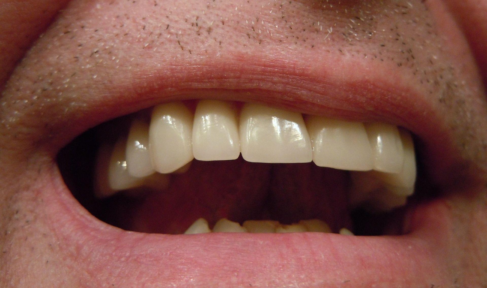 STUDIJA OTKRILA Nogometaši imaju zabrinjavajuće loše zube