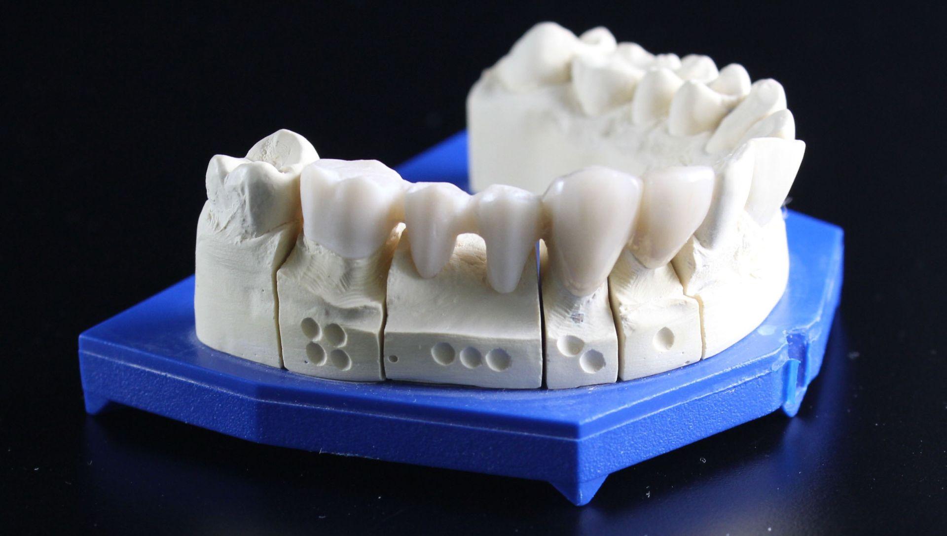Njemački stomatolozi: Sačuvajte izbijeni zub u hladnom mlijeku