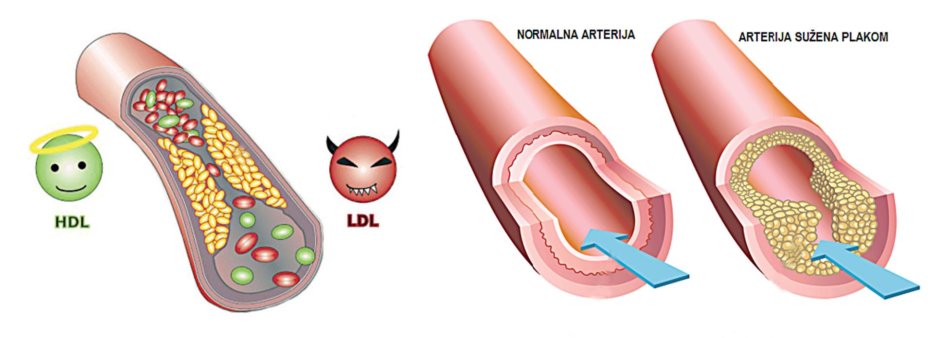 Kraj 40-godišnjoj zabludi: Namirnice s povišenim kolesterolom više nisu nepoželjne