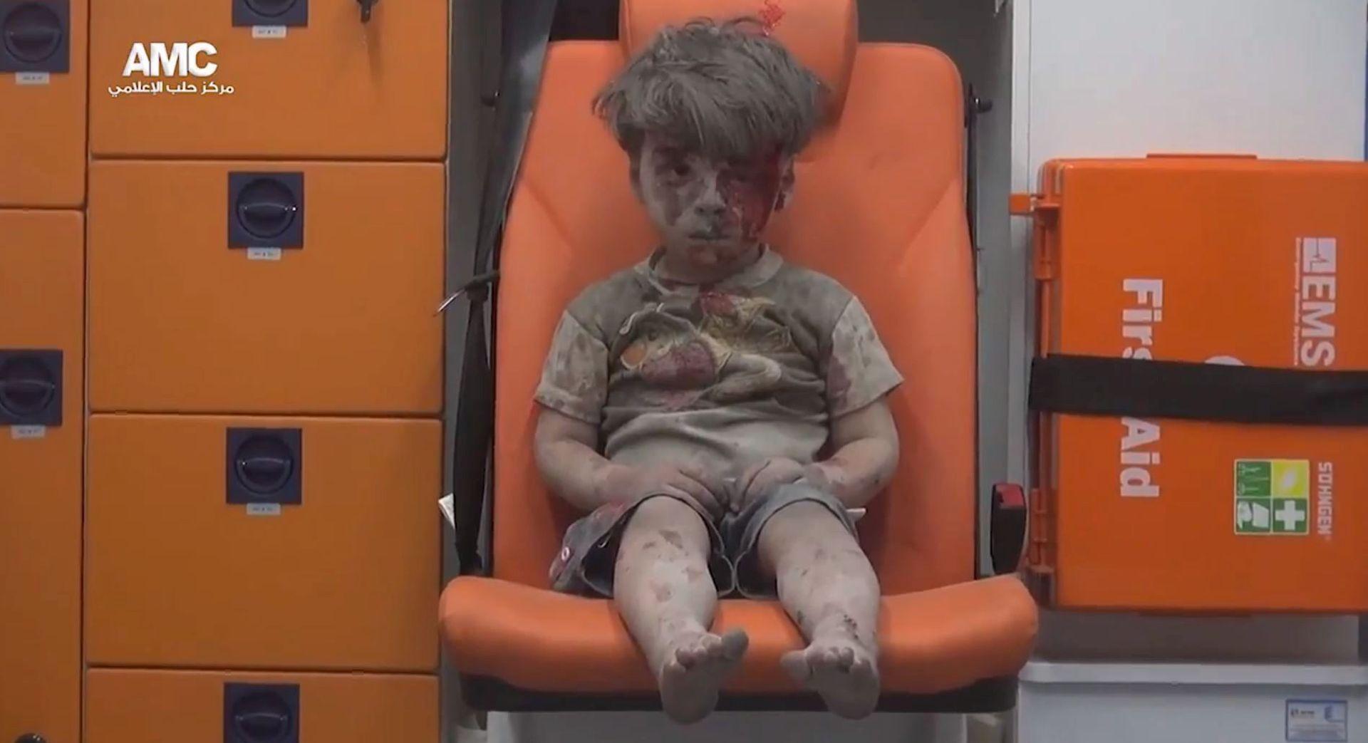 Brat sirijskog dječačića Omrana preminuo u bolnici
