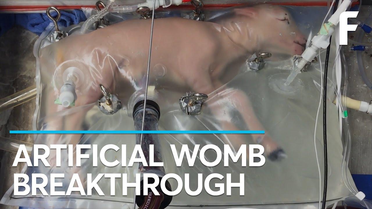VIDEO: Znanstvenici stvorili umjetnu maternicu, trebala bi smanjiti smrtnost nedonoščadi