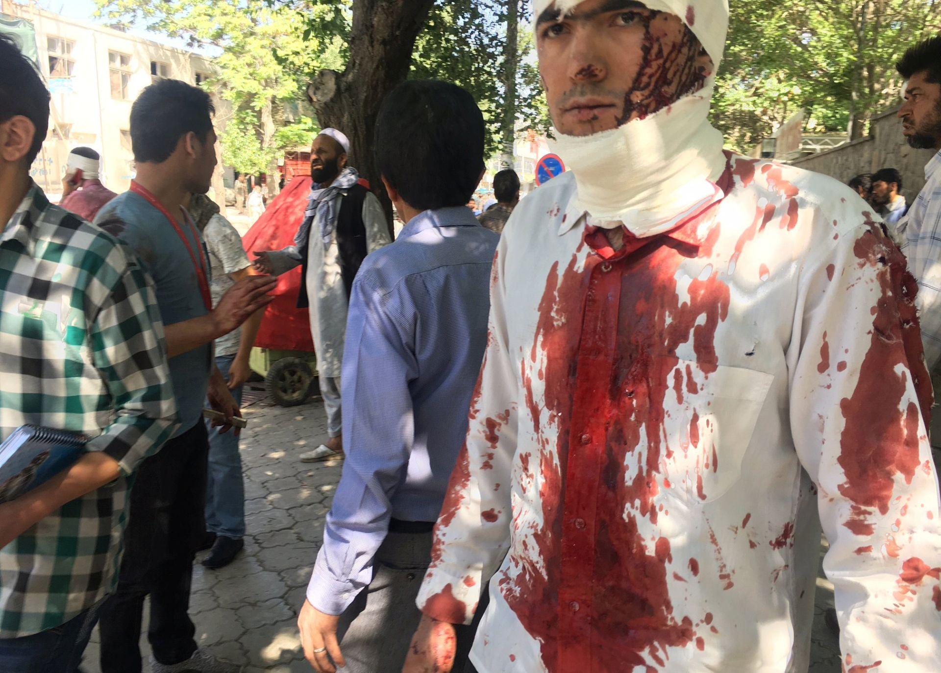 Vozač BBC-ja ubijen, četvorica novinara ranjena u napadu u Kabulu