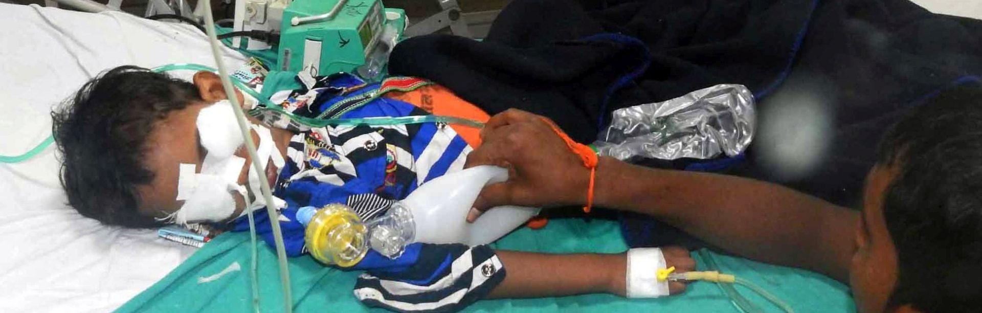 FATALNI ENCEFALITIS U indijskoj bolnici umrlo 60 djece zbog manjka kisika