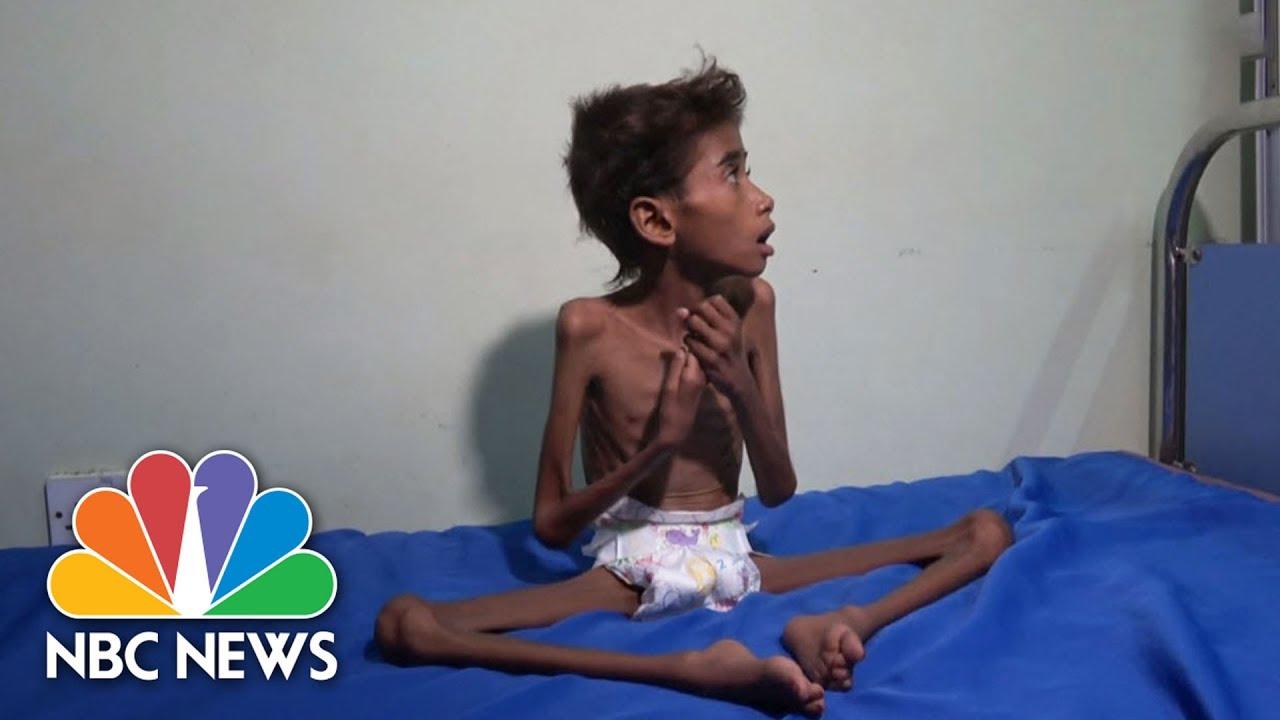 VIDEO: KRIZA U JEMENU Glad i kolera najviše prijete maloj djeci