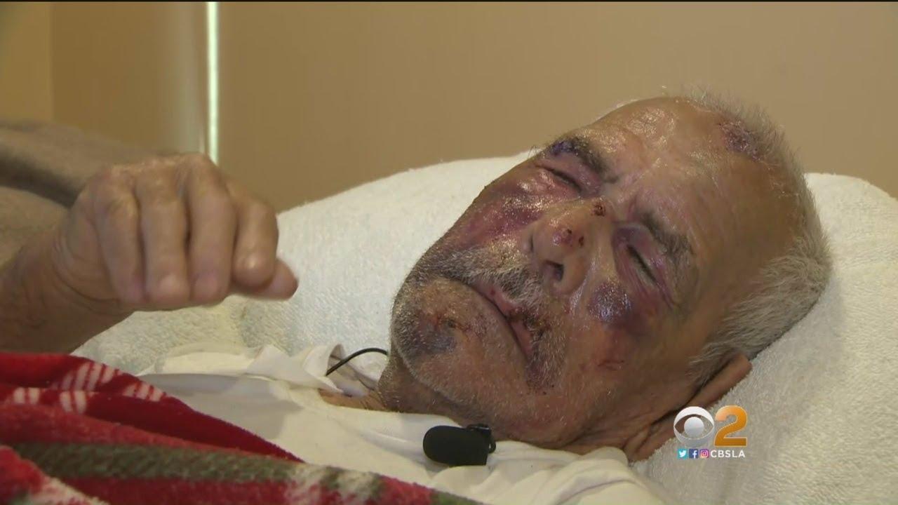 'VRATI SE U MEKSIKO!' Prolaznici pretukli 91-godišnjaka u Kaliforniji