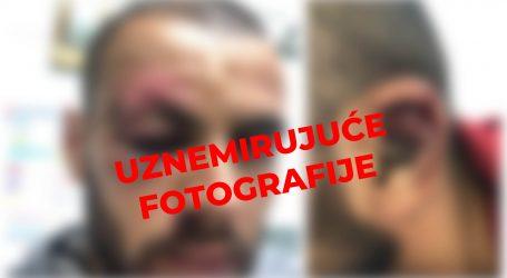Slaven Belupo objavio slike ozlijeđenog Ejupija